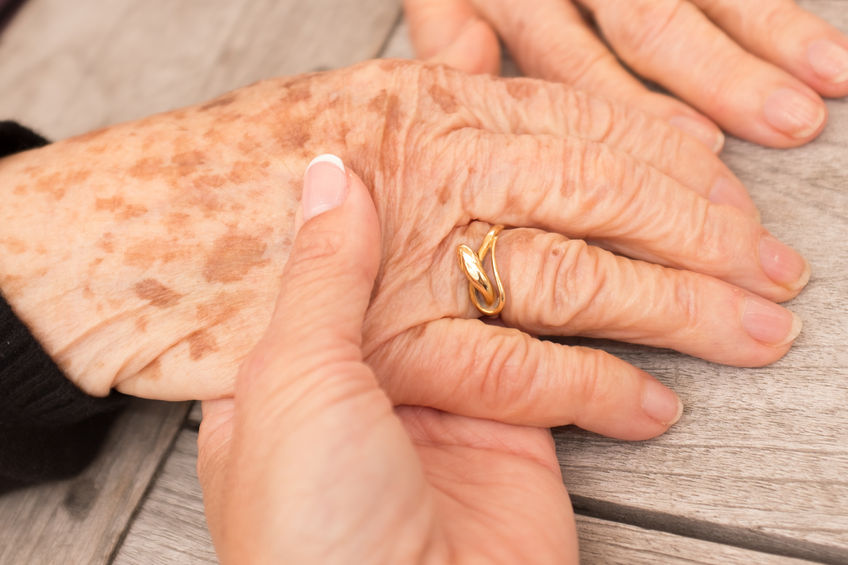pigmentvlekken op handen - handen bleken - handen pigment vlekken